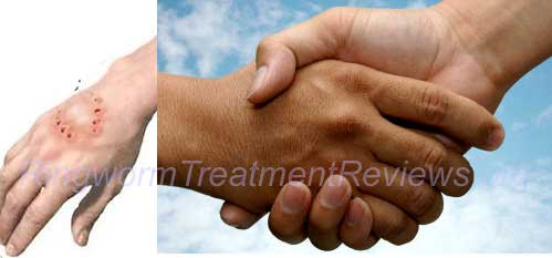 Ringworm Causes