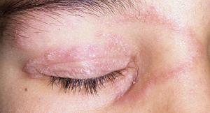 ringworm eye