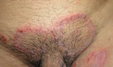 Ringworm Symptoms on Genitals and Groin